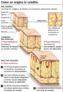 Por que tengo celulitis 2